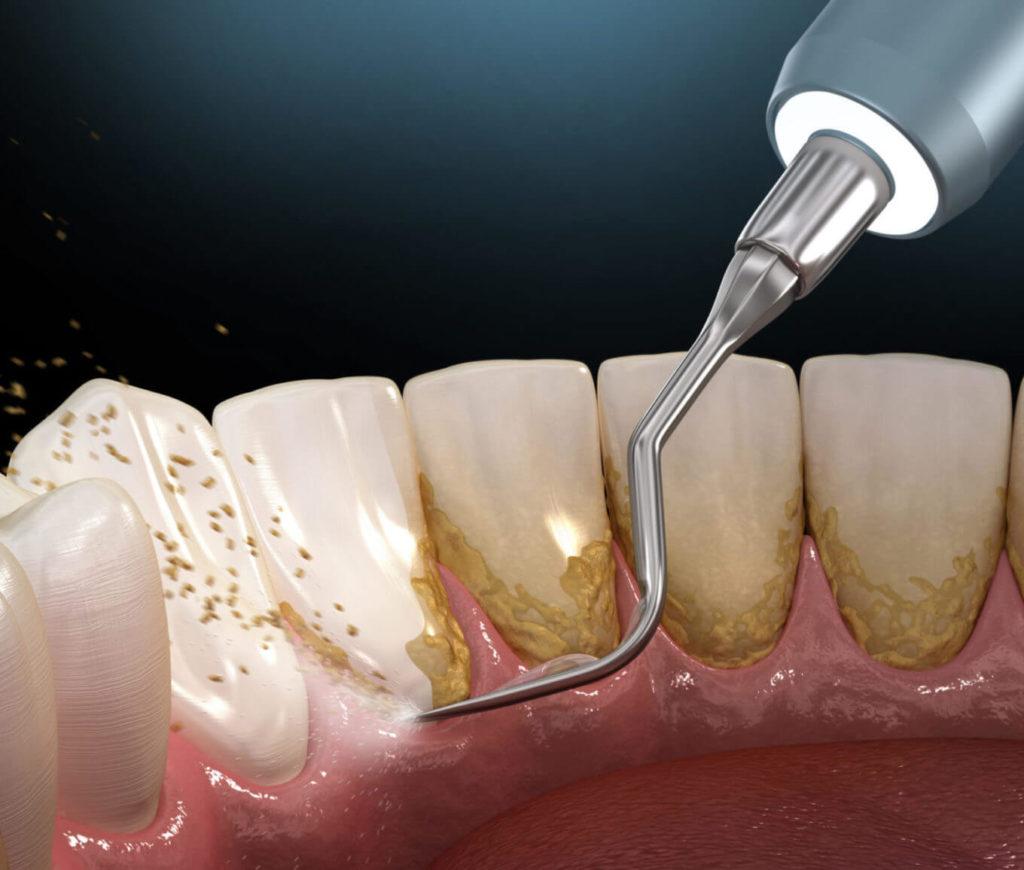 почистване на зъбен камък