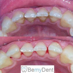 Премахване на зъбен камък